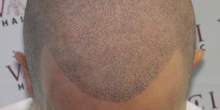 Bald Men Are Getting Head Tattoos Cosmetic Tattoos Fill