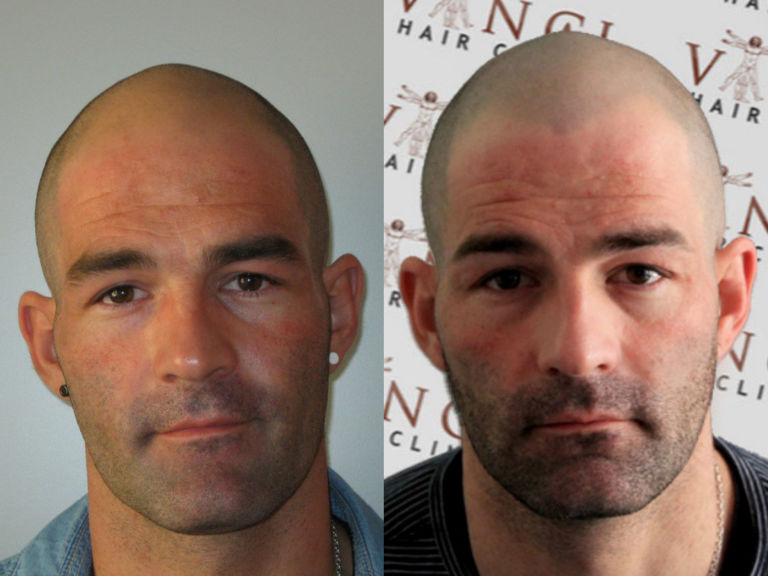Looks like thinning hair is not a issue with women if for Shave before tattoo